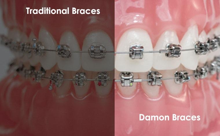 Damon Braces vs Traditional Braces